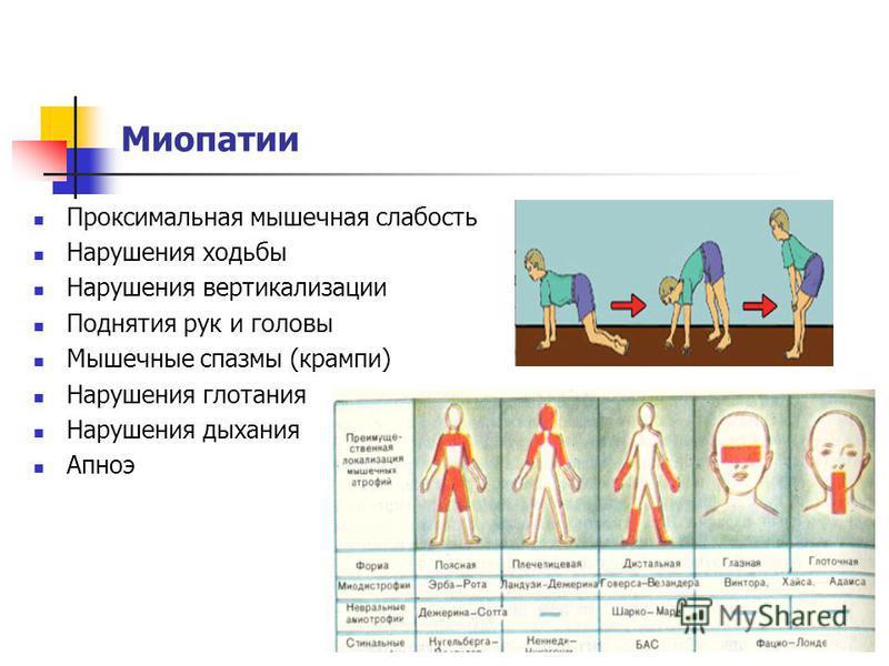 Миопатии Проксимальная мышечная слабость Нарушения ходьбы Нарушения вертикализации Поднятия рук и головы Мышечные спазмы (крампи) Нарушения глотания Нарушения дыхания Апноэ