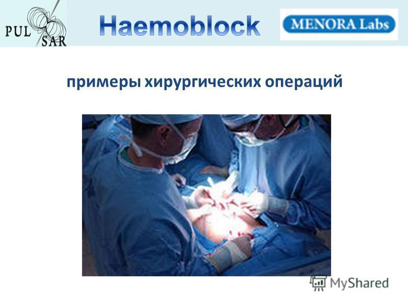 примеры хирургических операций