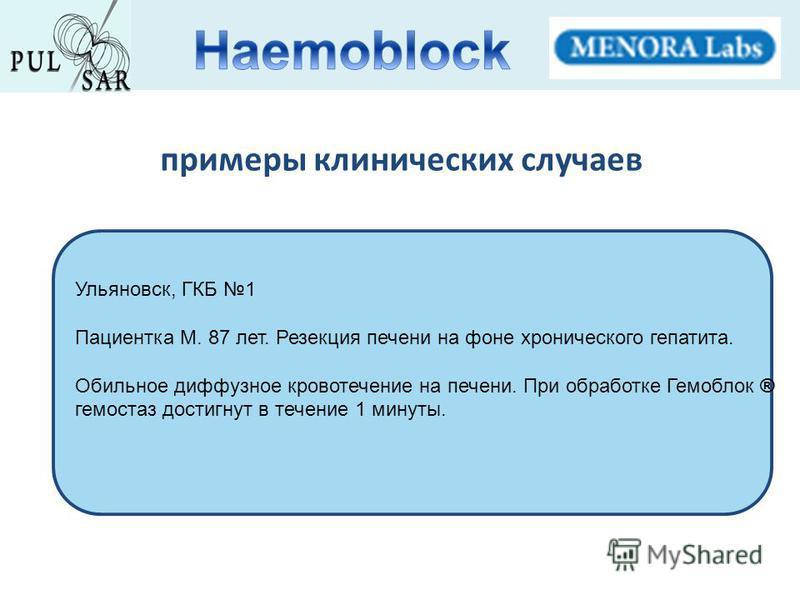 Ульяновск, ГКБ 1 Пациентка М. 87 лет. Резекция печени на фоне хронического гепатита. Обильное диффузное кровотечение на печени. При обработке Гемоблок ® гемостаз достигнут в течение 1 минуты. примеры клинических случаев