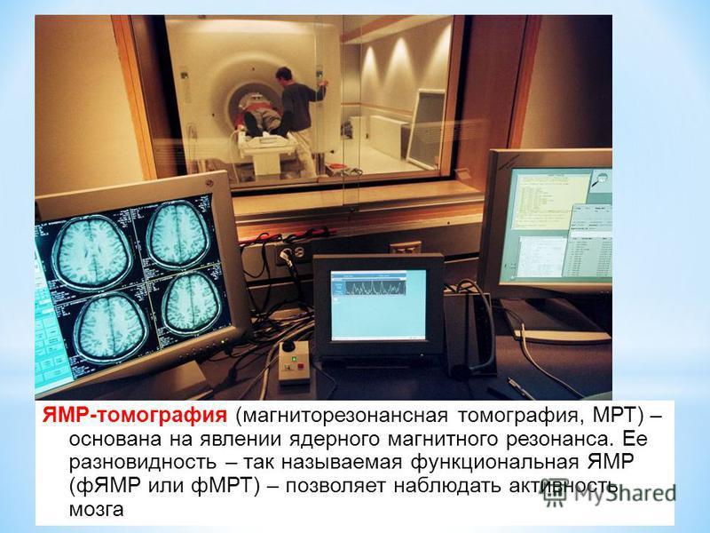 ЯМР-томография (магниторезонансная томография, МРТ) – основана на явлении ядерного магнитного резонанса. Ее разновидность – так называемая функциональная ЯМР (фЯМР или фМРТ) – позволяет наблюдать активность мозга