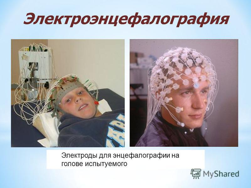 Электроды для энцефалографии на голове испытуемого Электроэнцефалография
