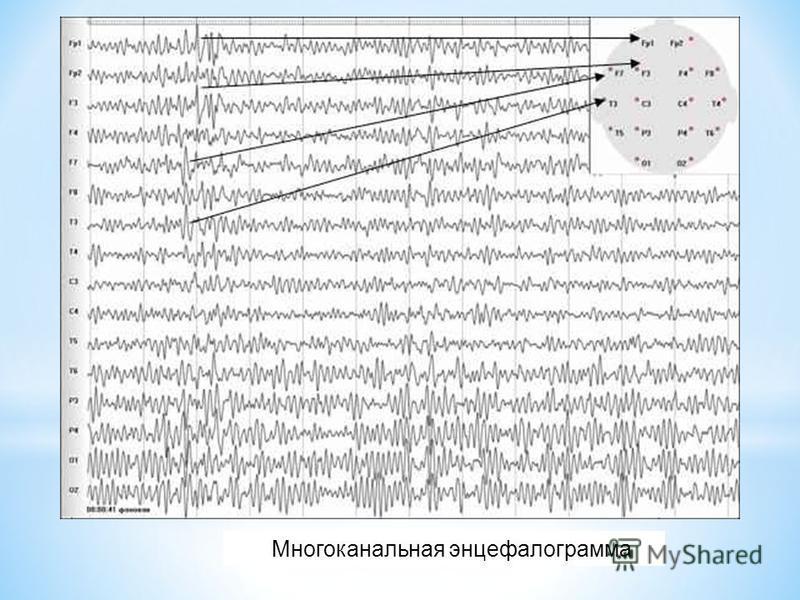 Многоканальная энцефалограмма