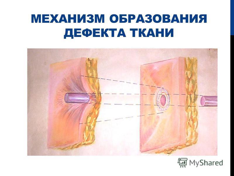 МЕХАНИЗМ ОБРАЗОВАНИЯ ДЕФЕКТА ТКАНИ