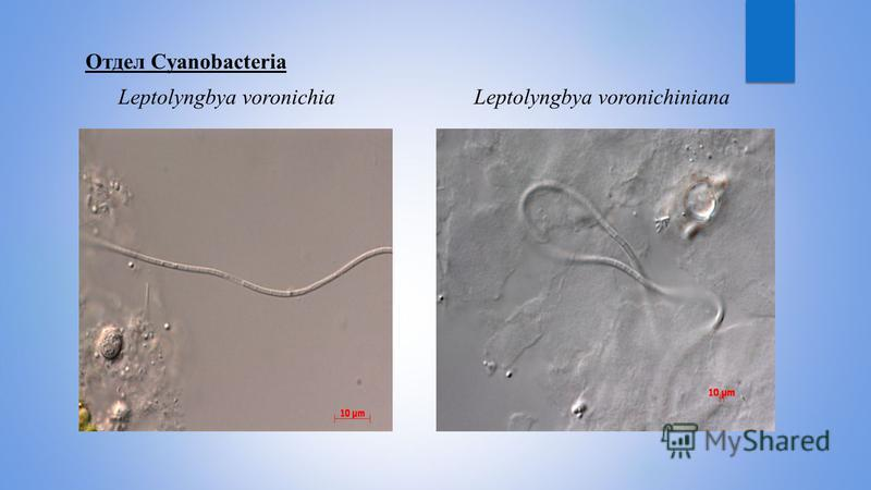 Отдел Cyanobacteria Leptolyngbya voronichia Leptolyngbya voronichiniana