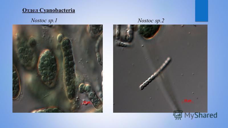 Отдел Cyanobacteria Nostoc sp.1 Nostoc sp.2