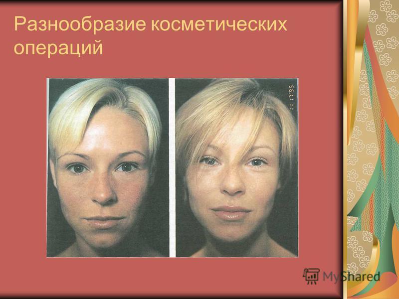 Разнообразие косметических операций
