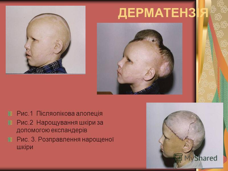 ДЕРМАТЕНЗІЯ Рис.1 Післяопікова алопеція Рис.2 Нарощування шкіри за допомогою експандерів Рис. 3. Розправлення нарощеної шкіри