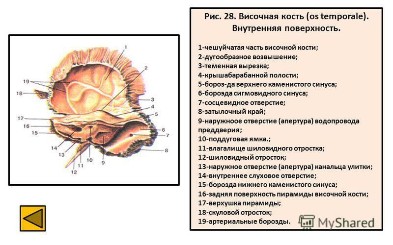 Рис. 28. Височная кость (os temporale). Внутренняя поверхность. 1-чешуйчатая часть височной кости; 2-дугообразное возвышение; 3-теменная вырезка; 4-крышабарабанной полости; 5-бороз-да верхнего каменистого синуса; 6-бороэда сигмовидного синуса; 7-сосц
