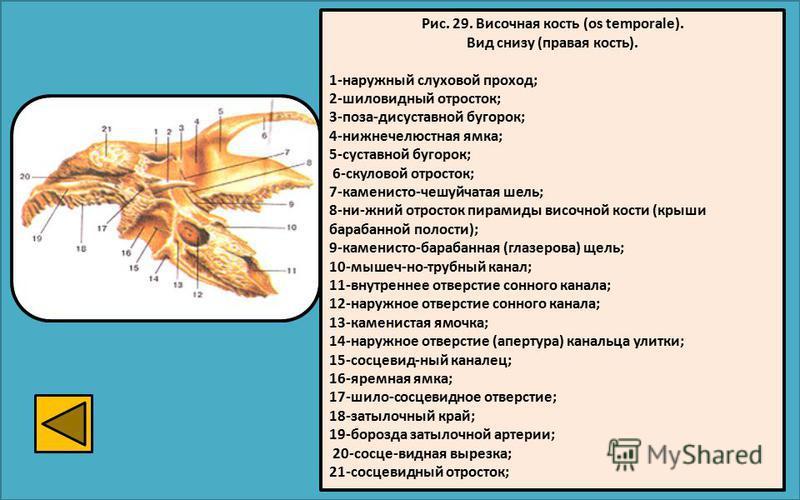 Рис. 29. Височная кость (os temporale). Вид снизу (правая кость). 1-наружный слуховой проход; 2-шиловидный отросток; 3-поза-дисуставной бугорок; 4-нижнечелюстная ямка; 5-суставной бугорок; 6-скуловой отросток; 7-каменисто-чешуйчатая шель; 8-ни-жний о