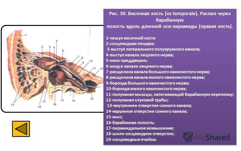 Рис. 30. Височная кость (os temporale). Распил через барабанную полость вдоль длинной оси пирамиды (правая кость). 1-чешуя височной кости 2-сосцевидная пещера; 3-выступ латерального полукружного канала; 4-выступ канала лицевого нерва; 5-окно преддвер