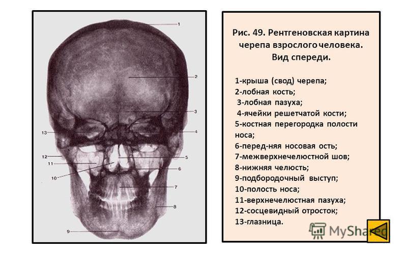 Рис. 49. Рентгеновская картина черепа взрослого человека. Вид спереди. 1-крыша (свод) черепа; 2-лобная кость; 3-лобная пазуха; 4-ячейки решетчатой кости; 5-костная перегородка полости носа; 6-перед-няя носовая ость; 7-межверхнечелюстной шов; 8-нижняя