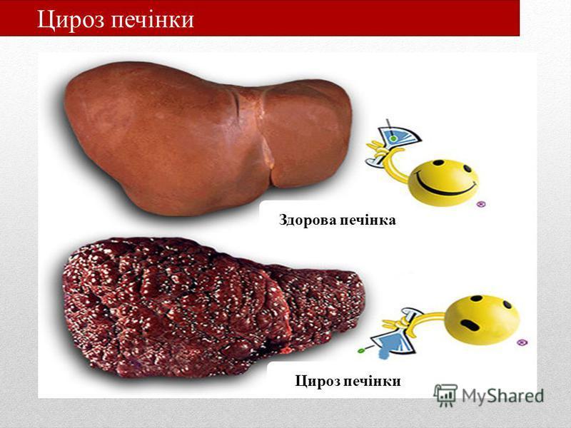 Цироз печінки Здорова печінка Цироз печінки