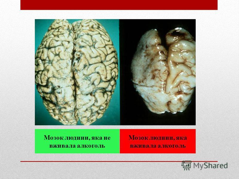 Мозок людини, яка не вживала алкоголь Мозок людини, яка вживала алкоголь
