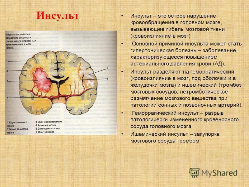 Инсульт Инсульт – это острое нарушение кровообращения в головном мозге, вызывающее гибель мозговой ткани (кровоизлияние в мозг) Основной причиной инсульта может стать гипертоническая болезнь – заболевание, характеризующееся повышением артериального д