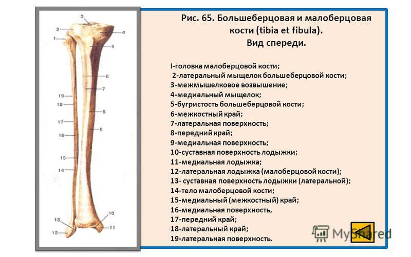 Рис. 65. Большеберцовая и малоберцовая кости (tibia et fibula). Вид спереди. I-головка малоберцовой кости; 2-латеральный мыщелок большеберцовой кости; 3-межмышелковое возвышение; 4-медиальный мыщелок; 5-бугристость большеберцовой кости; 6-межкостный