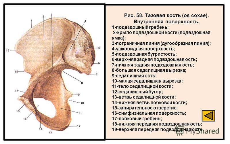 Рис. 58. Тазовая кость (os coxae). Внутренняя поверхность. 1-подвздошный гребень; 2-крыло подвздошной кости (подвздошная ямка); 3-пограничная линия (дугообразная линия); 4-ушковидная поверхность; 5-подвздошная бугристость; 6-верх-няя задняя подвздошн
