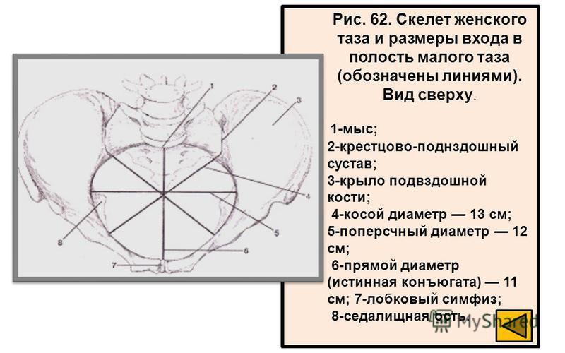 Рис. 62. Скелет женского таза и размеры входа в полость малого таза (обозначены линиями). Вид сверху. 1-мыс; 2-крестцово-поднздошный сустав; 3-крыло подвздошной кости; 4-косой диаметр 13 см; 5-поперсчный диаметр 12 см; 6-прямой диаметр (истинная конъ