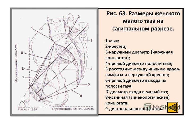 Рис. 63. Размеры женского малого таза на сагиттальном разрезе. 1-мыс; 2-крестец; 3-наружный диаметр (наружная конъюгата); 4-прямой диаметр полости таза; 5-расстояние между нижним краем симфиза и верхушкой крестца; 6-прямой диаметр выхода из полости т