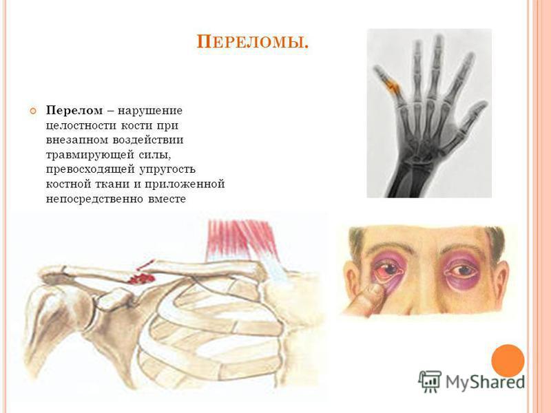 П ЕРЕЛОМЫ. Перелом – нарушение целостности кости при внезапном воздействии травмирующей силы, превосходящей упругость костной ткани и приложенной непосредственно вместе повреждения или вдали от него.