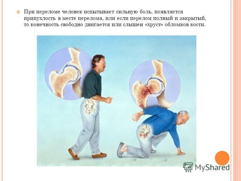 При переломе человек испытывает сильную боль, появляется припухлость в месте перелома, или если перелом полный и закрытый, то конечность свободно двигается или слышен «хруст» обломков кости.