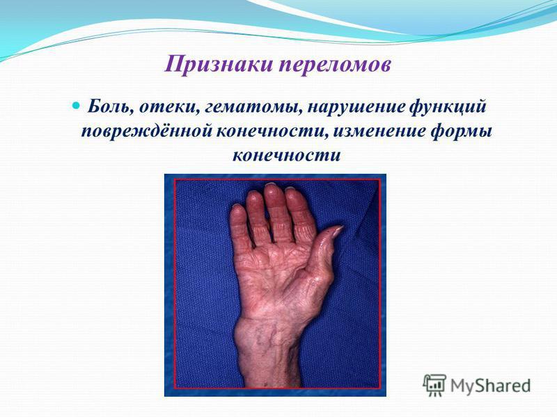 Признаки переломов Боль, отеки, гематомы, нарушение функций повреждённой конечности, изменение формы конечности