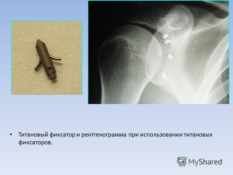 Титановый фиксатор и рентгенограмма при использовании титановых фиксаторов.