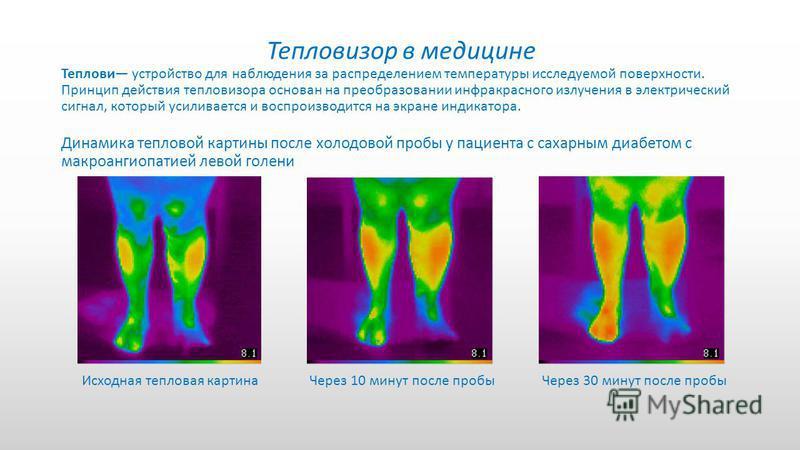 Тепловизор в медицине Теплови устройство для наблюдения за распределением температуры исследуемой поверхности. Принцип действия тепловизора основан на преобразовании инфракрасного излучения в электрический сигнал, который усиливается и воспроизводитс