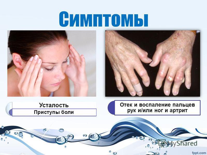 Симптомы Усталость Приступы боли Отек и воспаление пальцев рук и/или ног и артрит