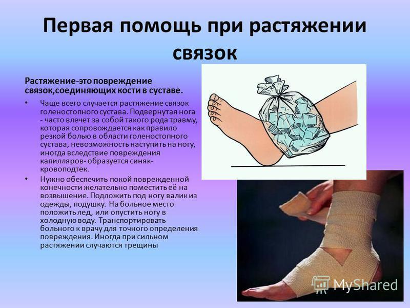Первая помощь при растяжении связок Растяжение-это повреждение связок,соединяющих кости в суставе. Чаще всего случается растяжение связок голеностопного сустава. Подвернутая нога - часто влечет за собой такого рода травму, которая сопровождается как