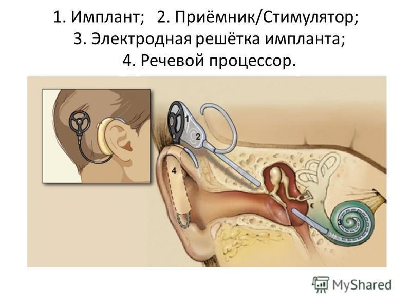 1. Имплант; 2. Приёмник/Стимулятор; 3. Электродная решётка импланта; 4. Речевой процессор.