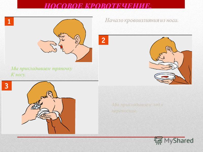 Начало кровоизлияния из носа. Мы прикладываем тряпочку К носу. Мы прикладываем лед к переносице. НОСОВОЕ КРОВОТЕЧЕНИЕ.