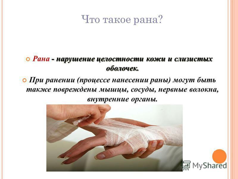 Рана - нарушение целостности кожи и слизистых оболочек. Рана - нарушение целостности кожи и слизистых оболочек. При ранении (процессе нанесении раны) могут быть также повреждены мышцы, сосуды, нервные волокна, внутренние органы. Что такое рана?