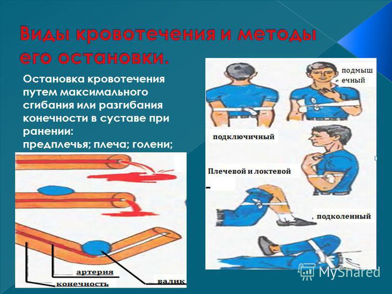 Остановка кровотечения путем максимального сгибания или разгибания конечности в суставе при ранении: предплечья; плеча; голени; бедра