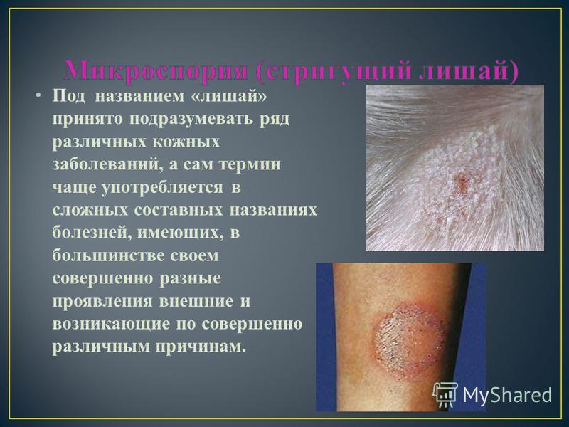 Под названием «лишай» принято подразумевать ряд различных кожных заболеваний, а сам термин чаще употребляется в сложных составных названиях болезней, имеющих, в большинстве своем совершенно разные проявления внешние и возникающие по совершенно различ