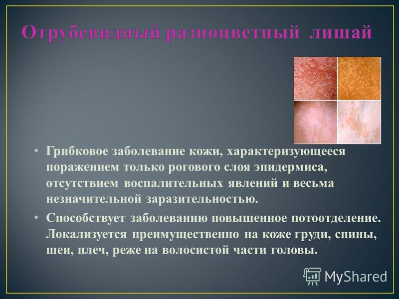 Грибковое заболевание кожи, характеризующееся поражением только рогового слоя эпидермиса, отсутствием воспалительных явлений и весьма незначительной заразительностью. Способствует заболеванию повышенное потоотделение. Локализуется преимущественно на