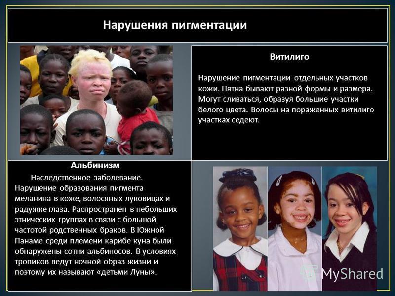 Нарушения пигментации Альбинизм Наследственное заболевание. Нарушение образования пигмента меланина в коже, волосяных луковицах и радужке глаза. Распространен в небольших этнических группах в связи с большой частотой родственных браков. В Южной Панам