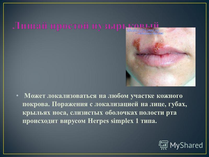 Может локализоваться на любом участке кожного покрова. Поражения с локализацией на лице, губах, крыльях носа, слизистых оболочках полости рта происходит вирусом Herpes simplex 1 типа.