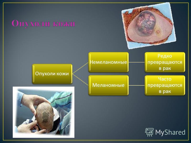 Опухоли кожи Немеланомные Редко превращаются в рак Меланомные Часто превращаются в рак