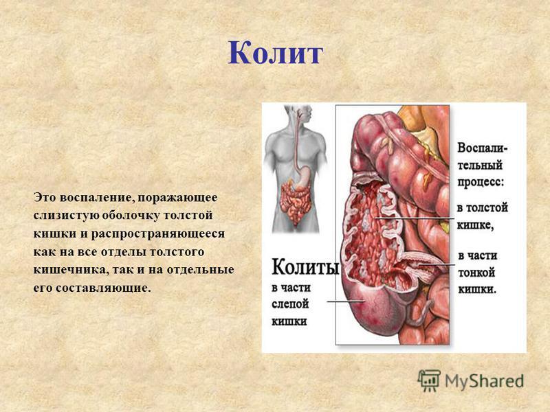 Колит Это воспаление, поражающее слизистую оболочку толстой кишки и распространяющееся как на все отделы толстого кишечника, так и на отдельные его составляющие.