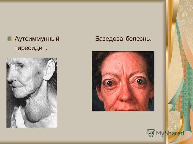 Аутоиммунный Базедова болезнь. тиреоидит.