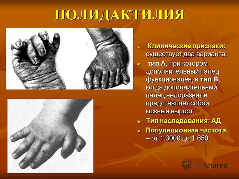 ПОЛИДАКТИЛИЯ Клинические признаки: существует два варианта: Клинические признаки: существует два варианта: тип А, при котором дополнительный палец функционален, и тип В, когда дополнительный палец недоразвит и представляет собой кожный вырост. тип А,