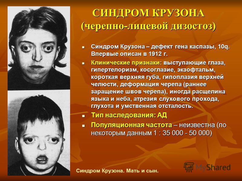 СИНДРОМ КРУЗОНА (черепно-лицевой дизостоз) Синдром Крузона – дефект гена каспазы, 10q. Впервые описан в 1912 г. Синдром Крузона – дефект гена каспазы, 10q. Впервые описан в 1912 г. Клинические признаки: выступающие глаза, гипертелоризм, косоглазие, э