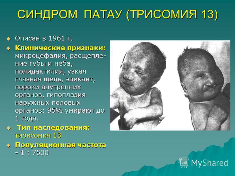 СИНДРОМ ПАТАУ (ТРИСОМИЯ 13) Описан в 1961 г. Описан в 1961 г. Клинические признаки: микроцефалия, расщепле- ние губы и неба, полидактилия, узкая глазная щель, эпикант, пороки внутренних органов, гипоплазия наружных половых органов; 95% умирают до 1 г