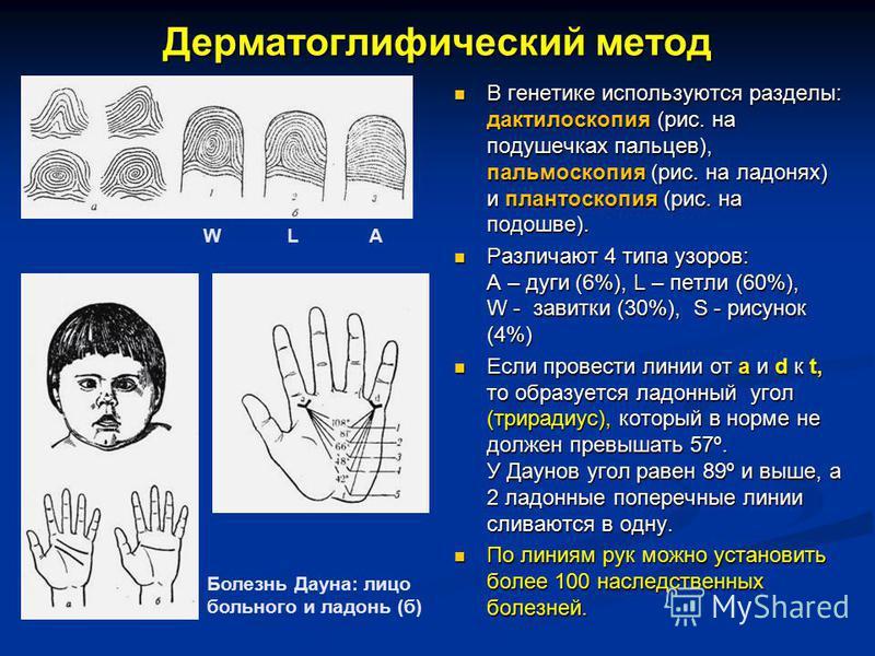 Дерматоглифический метод В генетике используются разделы: дактилоскопия (рис. на подушечках пальцев), пальмоскопия (рис. на ладонях) и плантоскопия (рис. на подошве). Различают 4 типа узоров: А – дуги (6%), L – петли (60%), W - завитки (30%), S - рис
