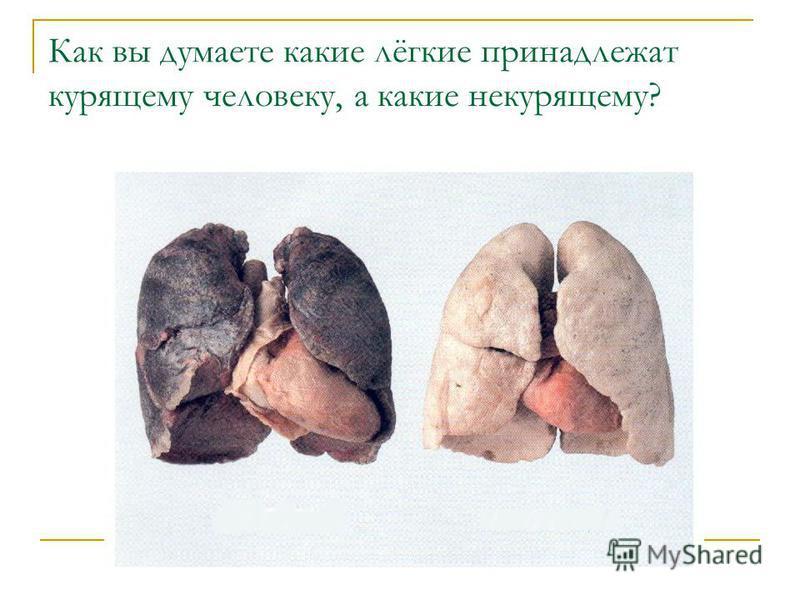 Как вы думаете какие лёгкие принадлежат курящему человеку, а какие некурящему?
