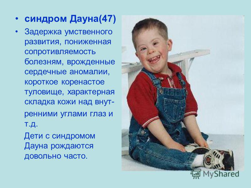 синдром Дауна(47) Задержка умственного развития, пониженная сопротивляемость болезням, врожденные сердечные аномалии, короткое коренастое туловище, характерная складка кожи над внутренними углами глаз и т.д. Дети с синдромом Дауна рождаются довольно