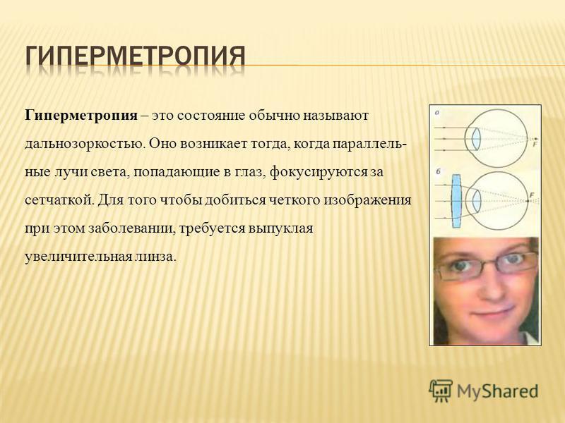 Гиперметропия – это состояние обычно называют дальнозоркостью. Оно возникает тогда, когда параллельные лучи света, попадающие в глаз, фокусируются за сетчаткой. Для того чтобы добиться четкого изображения при этом заболевании, требуется выпуклая увел