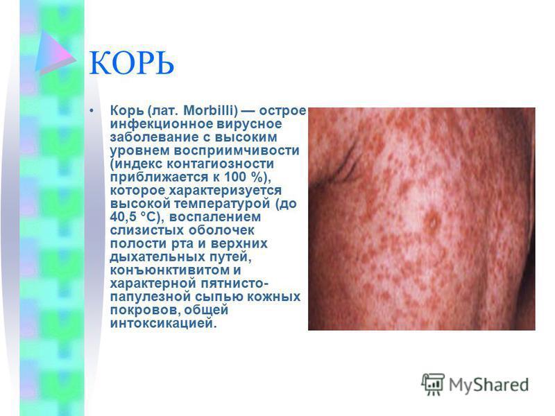 КОРЬ Корь (лат. Morbilli) острое инфекционное вирусное заболевание с высоким уровнем восприимчивости (индекс контагиозности приближается к 100 %), которое характеризуется высокой температурой (до 40,5 °C), воспалением слизистых оболочек полости рта и