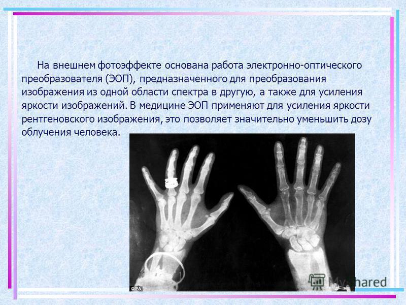 На внешнем фотоэффекте основана работа электронно-оптического преобразователя (ЭОП), предназначенного для преобразования изображения из одной области спектра в другую, а также для усиления яркости изображений. В медицине ЭОП применяют для усиления яр