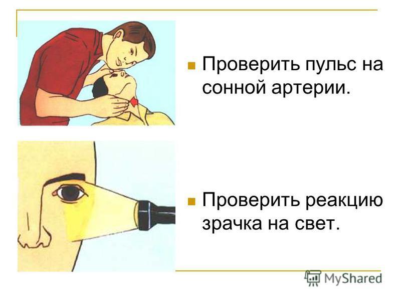 Проверить пульс на сонной артерии. Проверить реакцию зрачка на свет.